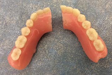 Denture-Repairs